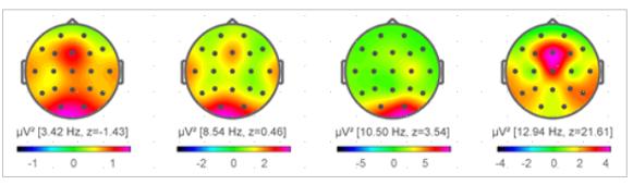 Mapeo del registro de la actividad cerebral.