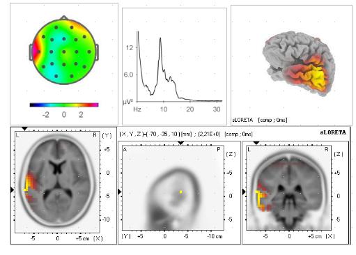 Tomografía de la actividad cerebral sLORETA.